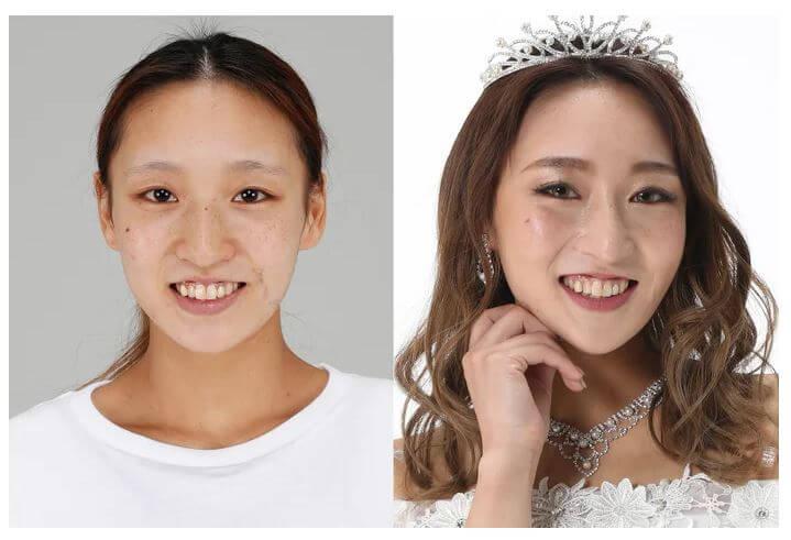 整形シンデレラ山田麻莉亜(やまだまりあ) 整形前と整形後の比較顔画像